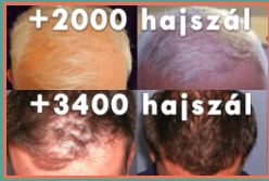 tartós hajbeültetés